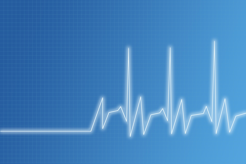 Heart beat chart